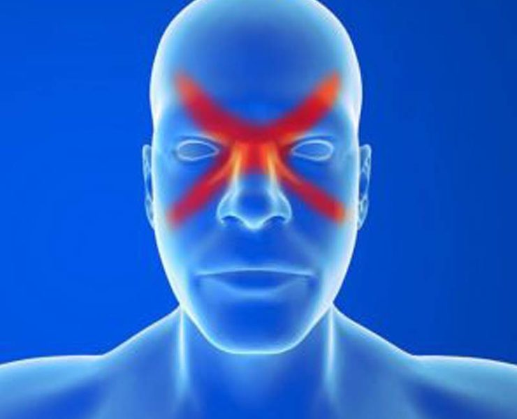 identify sinus migraine