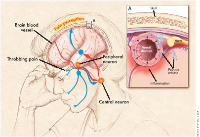 Detailed view of the brain and where the migraine begins